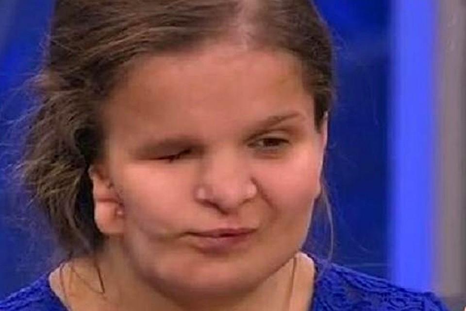 Катя родилась с редким заболеванием - синдромом Гольденхара: это врожденная патология, при которой неправильно развивается одна половина лица
