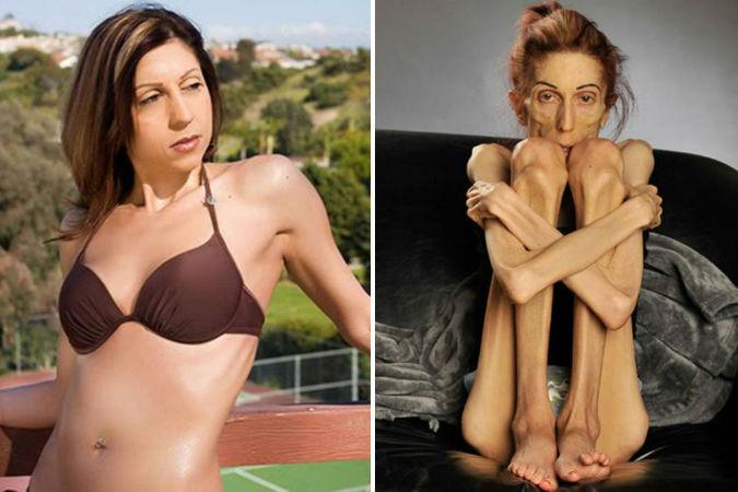 как похудела актриса