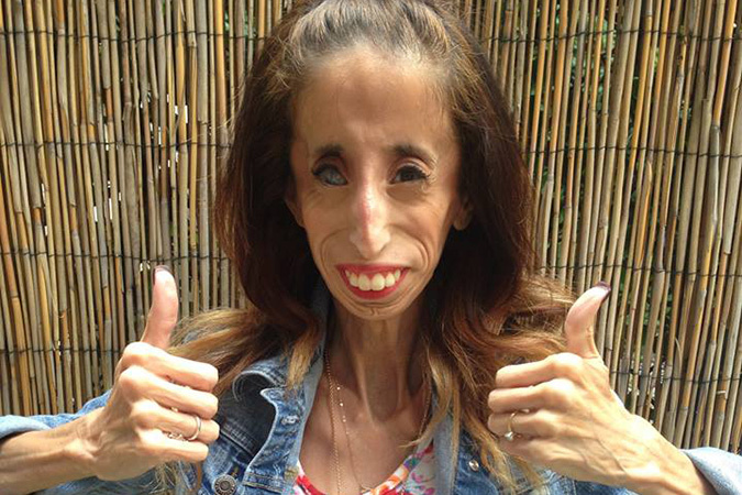 26-летнюю Лиззи Веласкес из штата Техас пользователи интернета признали «самой некрасивой женщиной в мире»