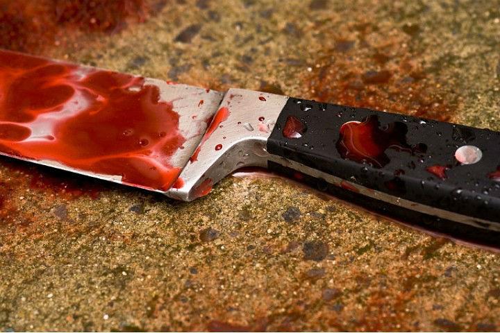 """Неизвестный ударил мужчину ножом в ягодицу Фото: архив """"КП"""""""