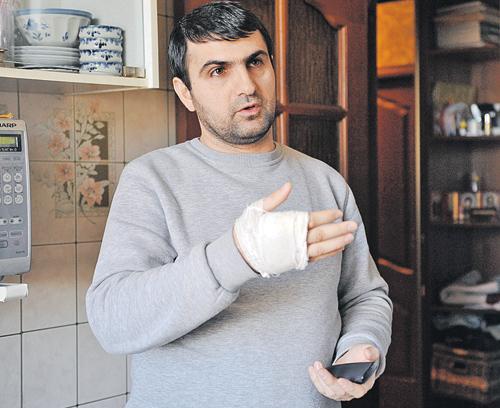 У Анара перебинтована рука: именно ею он разбил лицо Ольге (на фото внизу).