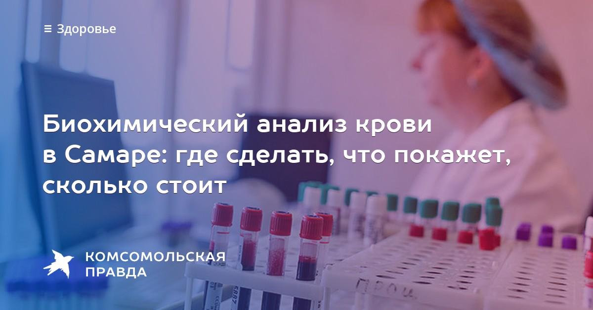 Сколько стоит общий анализ крови в самаре Прививочная карта 063 у Метрогородок