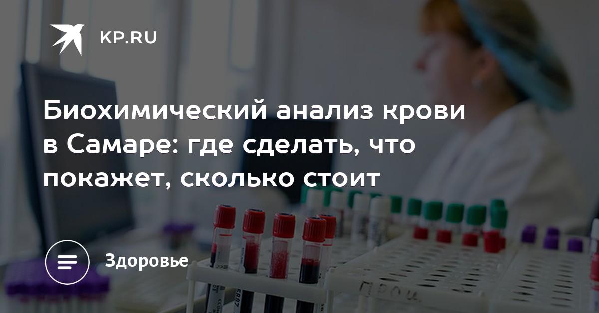 Сколько стоит общий анализ крови в самаре Медицинская справка для работы с гостайной Мякинино
