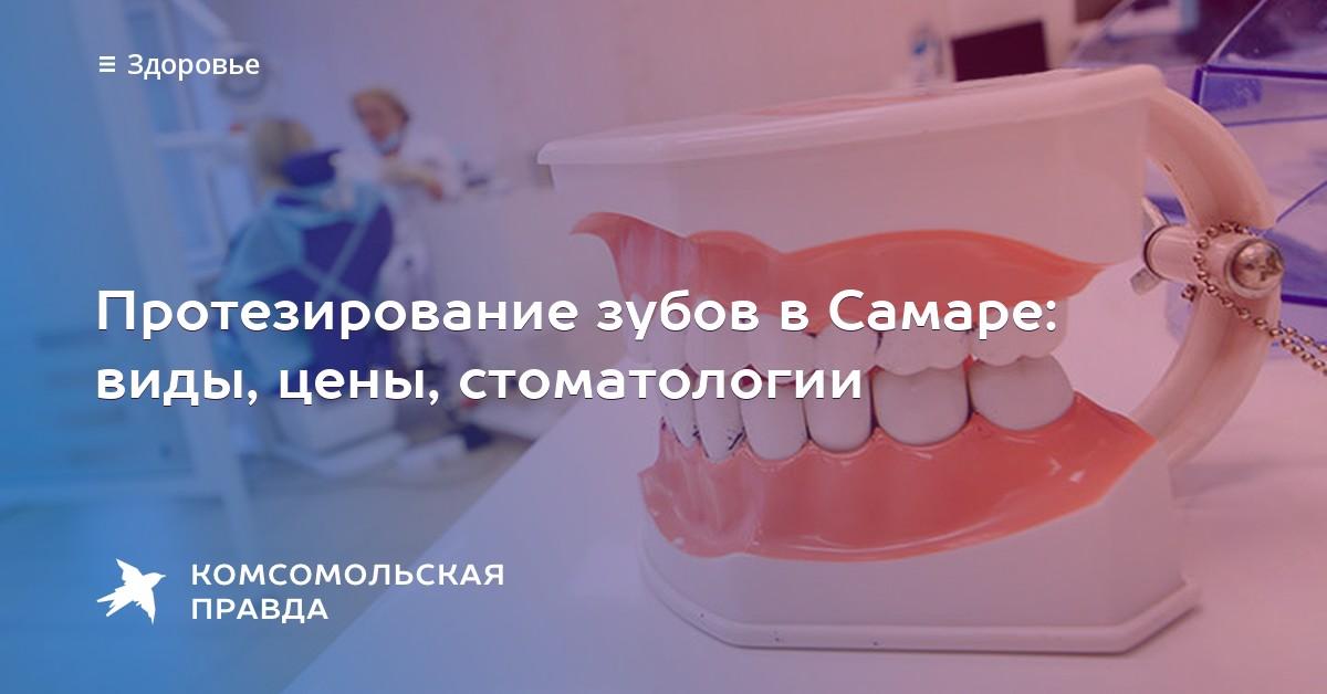Зубное протезирование в самаре