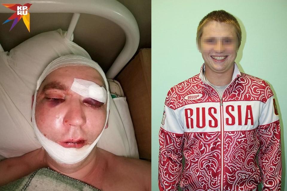 Очевидцы утверждают, что детский тренер стрелял по гостям из травмата (на фото справа). По их словам, он и подстрелил мужчину, которому предстоит тяжелая операция (слева). Фото: предоставлено потерпевшими, а также с сайта stadion-zarya.ru