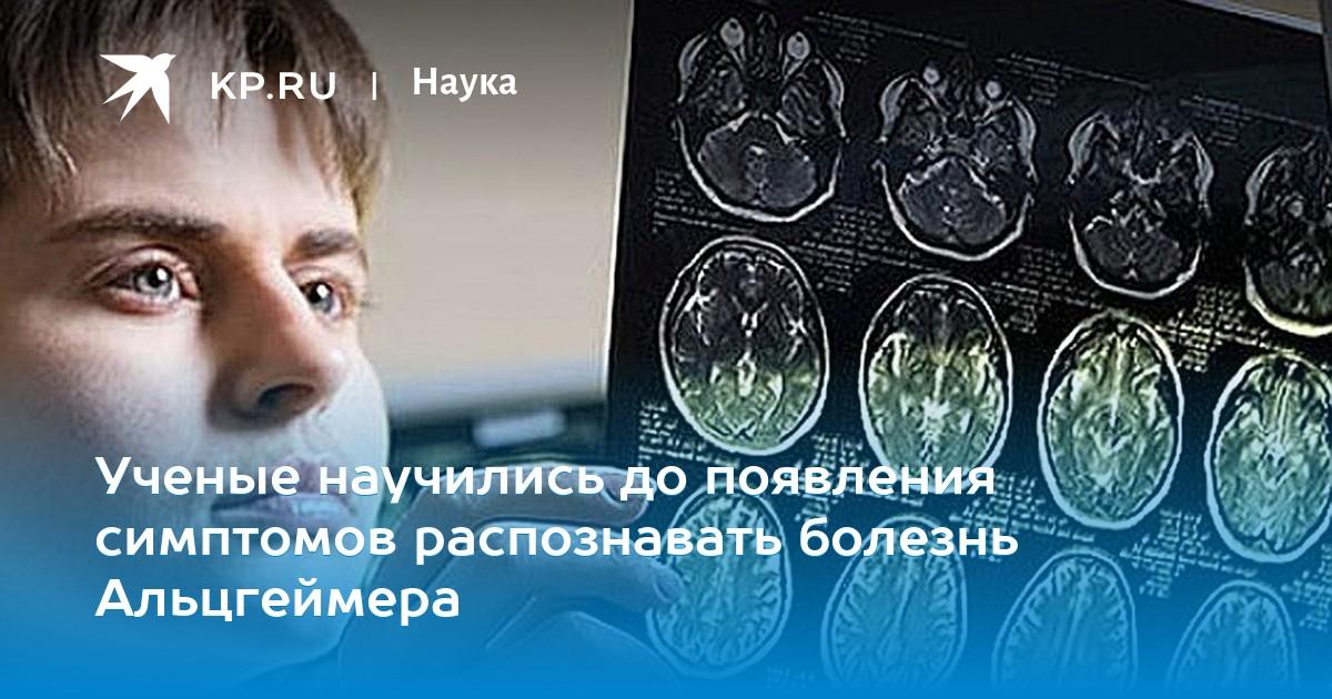 Ученые научились до появления симптомов распознавать болезнь Альцгеймера