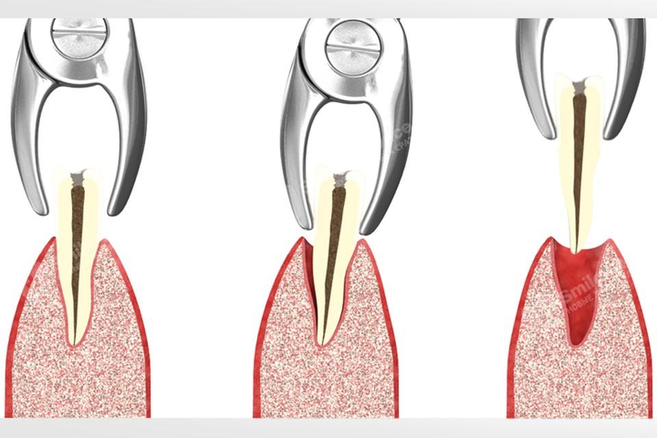 Как проходит процесс удаления зуба. Фото: Smile-at-Once