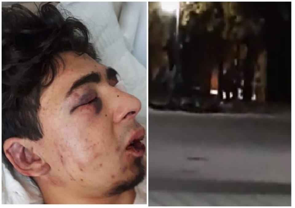 Лучиана избили в центре Кишинева.