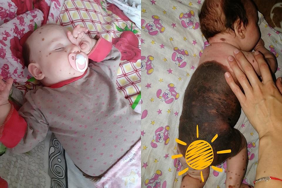 Гигантская родина занимает больше 80 % тела шестимесячной Вики Хвостанцевой. Фото: страница Марии Хвостанцевой ВКонтакте