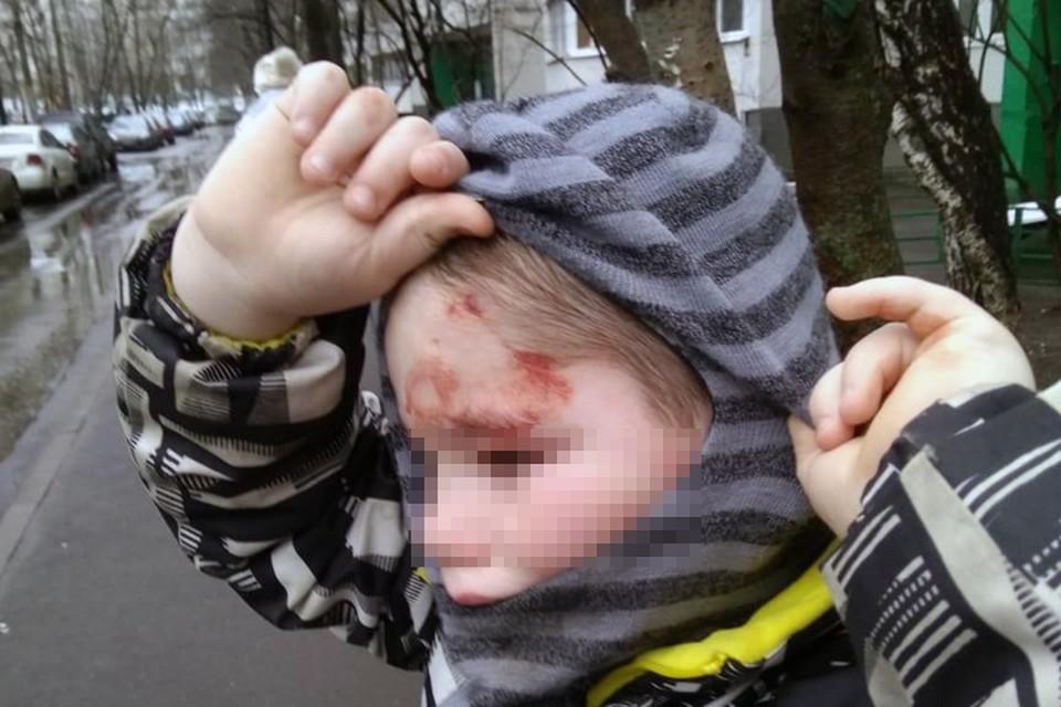 Что бы ни произошло в семье, но кровь на лице ребенка и следы побоев это повод, как минимум, для госпитализации и доследственной проверки