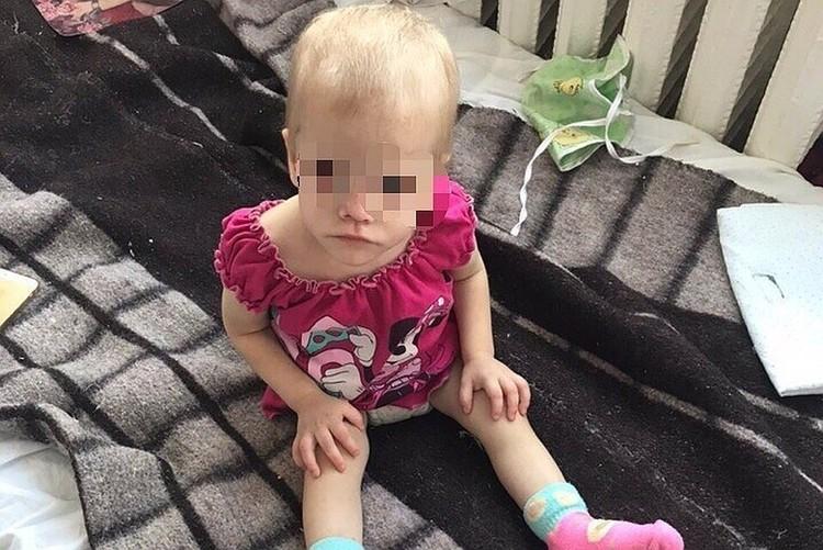 Малышка попала в больницу с травмой головы и истощением. Фото: предоставлено волонтерами