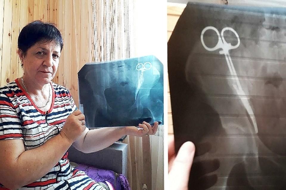 Много лет врачи не могли объяснить женщине, почему у нее болит живот