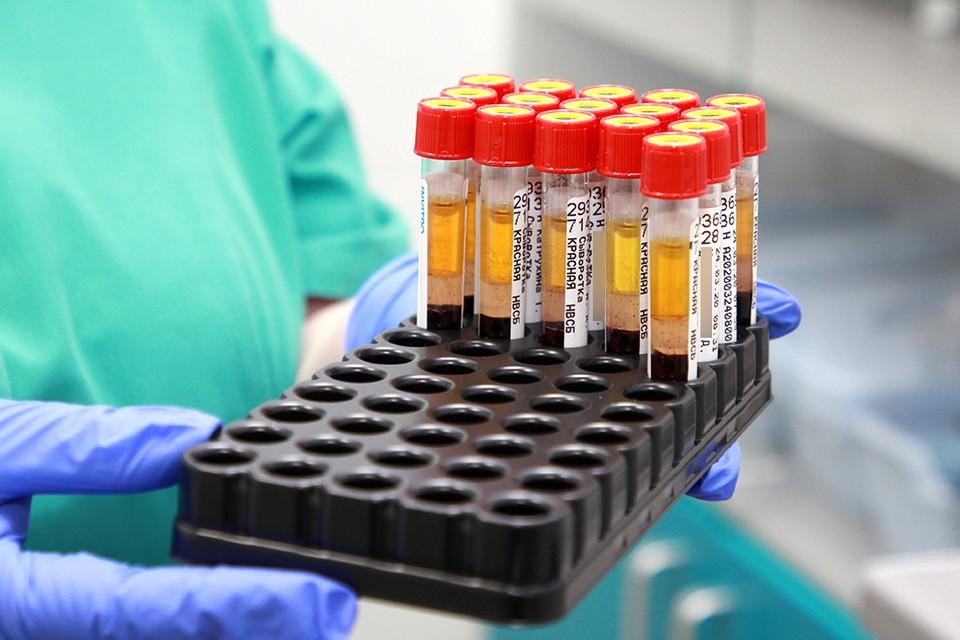 Еще 137 случаев заражения коронавирусом подтвердились в Иркутской области