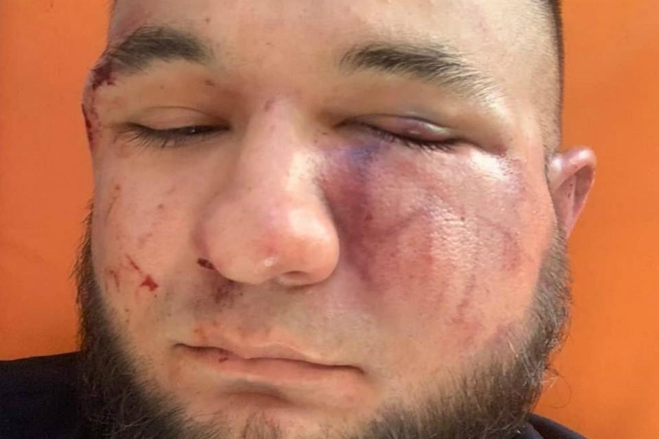 В Ростове началась проверка по факту избиения блогера Гаспара Авакяна. Фото: аккаунт Гаспара Авакяна в Инстаграм