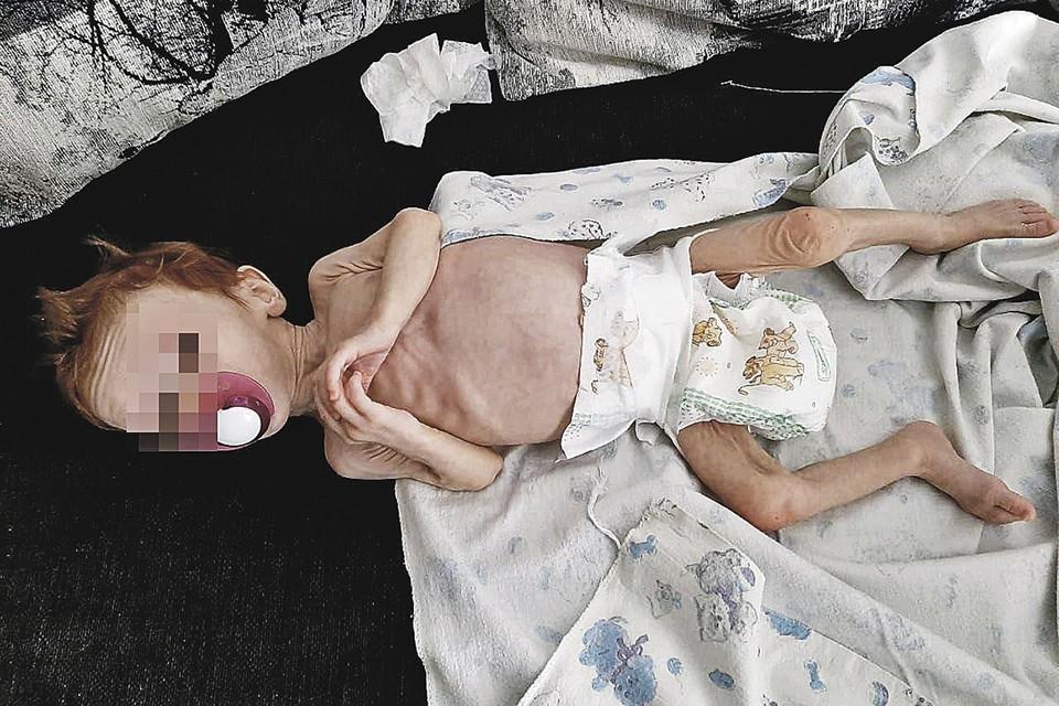 Малышка в крайне истощенном состоянии в больнице. Фото: Предоставлено очевидцами