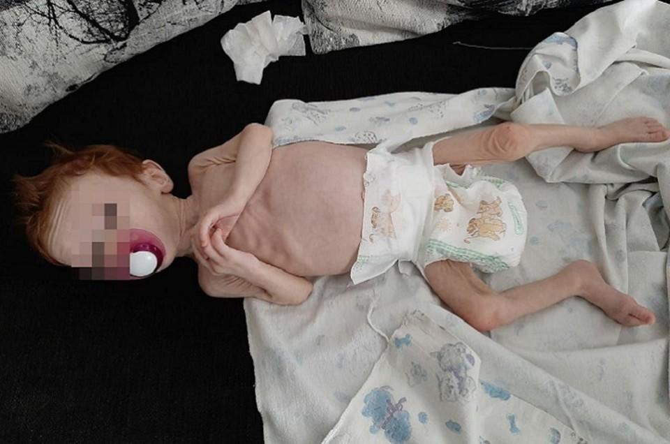 В тяжелом состоянии девочку доставили в ОДКБ № 1 Екатеринбурга