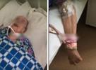«Привязали к кровати и оставили без лекарств»: пациенты ковидного стационара в Челябинске обвиняют врачей в смерти бабушки в  отделении