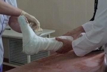 В Тюмени врачи создали пациенту новую челюсть из кости голени