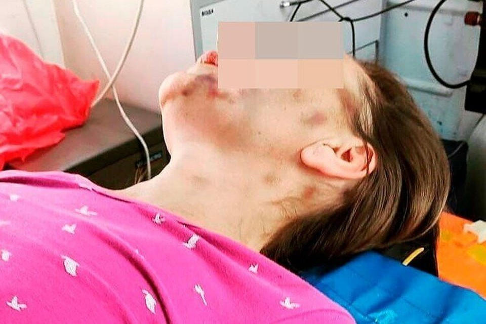 Ольга Салдину привезли в больницу в крайнем истощении и синяками по всему телу