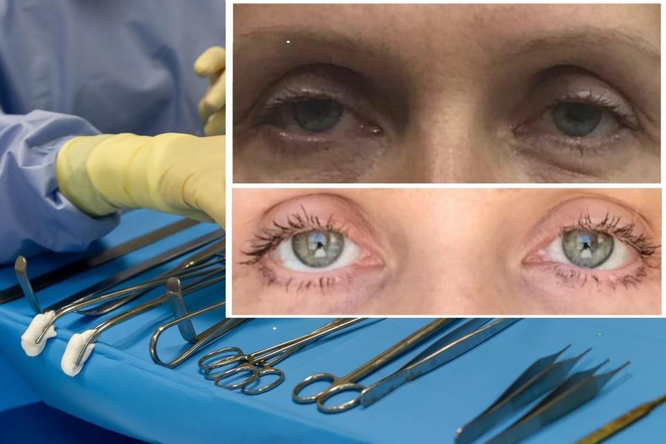 Глаза сибирячки после операции стали разными. Фото: личный архив/Олег ЗОЛОТО.