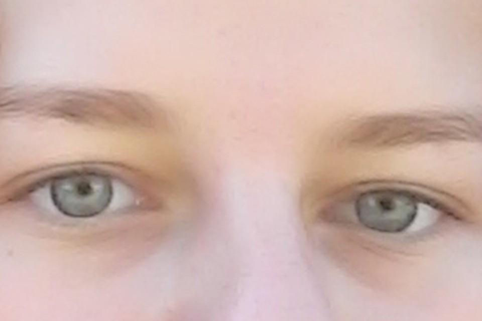 Ученые рассказали, почему нужно тщательно исследовать состояние глаз пациентов с ковидом.