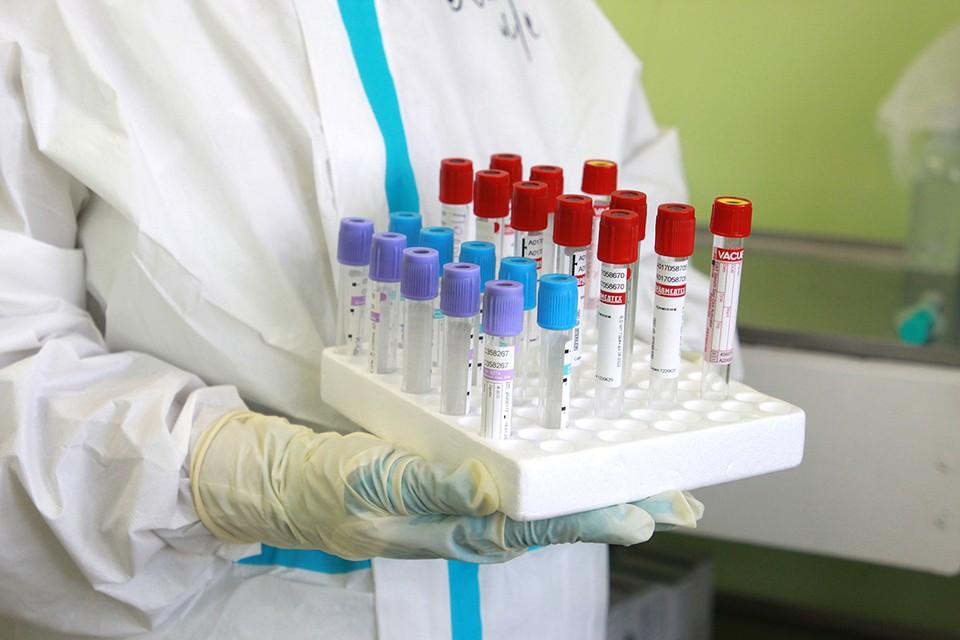 Еще девять пациентов с коронавирусом умерли в Иркутской области за сутки