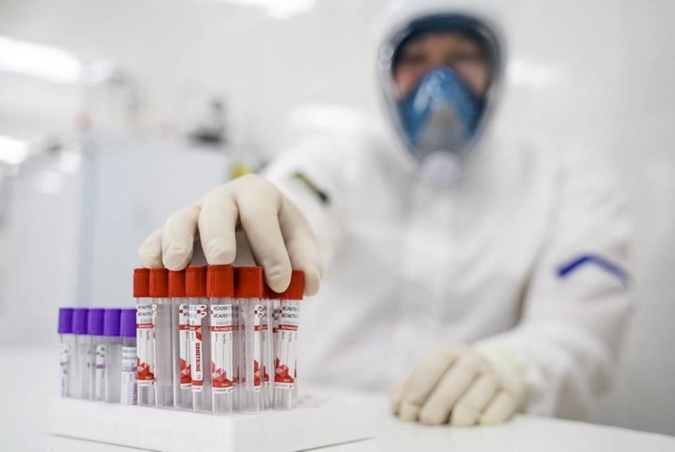 Общее число выявленных случаев коронавируса в Пермском крае достигло 57 180.
