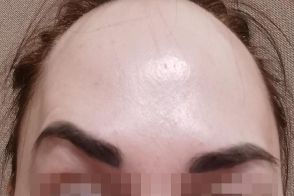 """У сибирячки перекосило лицо после посещения косметолога. Фото: """"Фламп""""."""