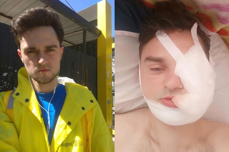 Доставщика еды жестоко избил водитель «Мерседеса». Фото: предоставлено Юлией