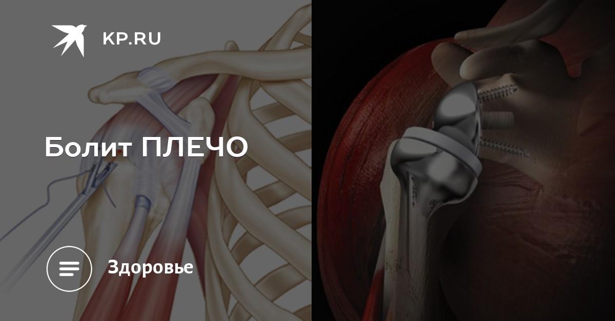 Импланты плечевого сустава в астрахани мышцы тазобедренного сустава анатомия