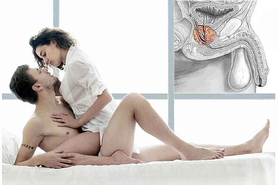 незащищенный секс с проституткой