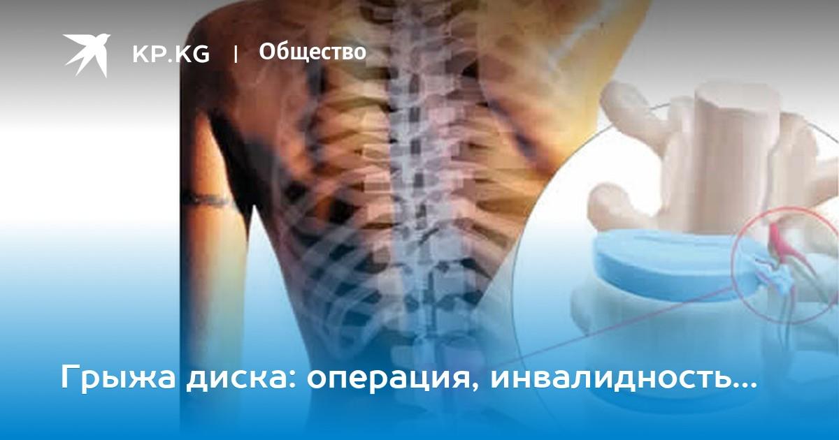этом что-то инвалидность при распространенном остеохондрозе украина просто отличный, буду