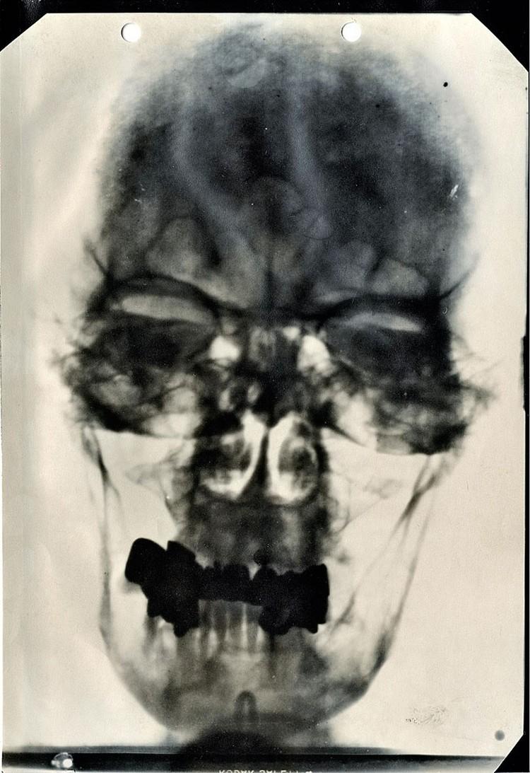 Рентгеновский снимок черепа Гитлера. 27 зубов заменены протезами, свои только 4 нижних резца (на снимке они светлее) и 1 коренной.