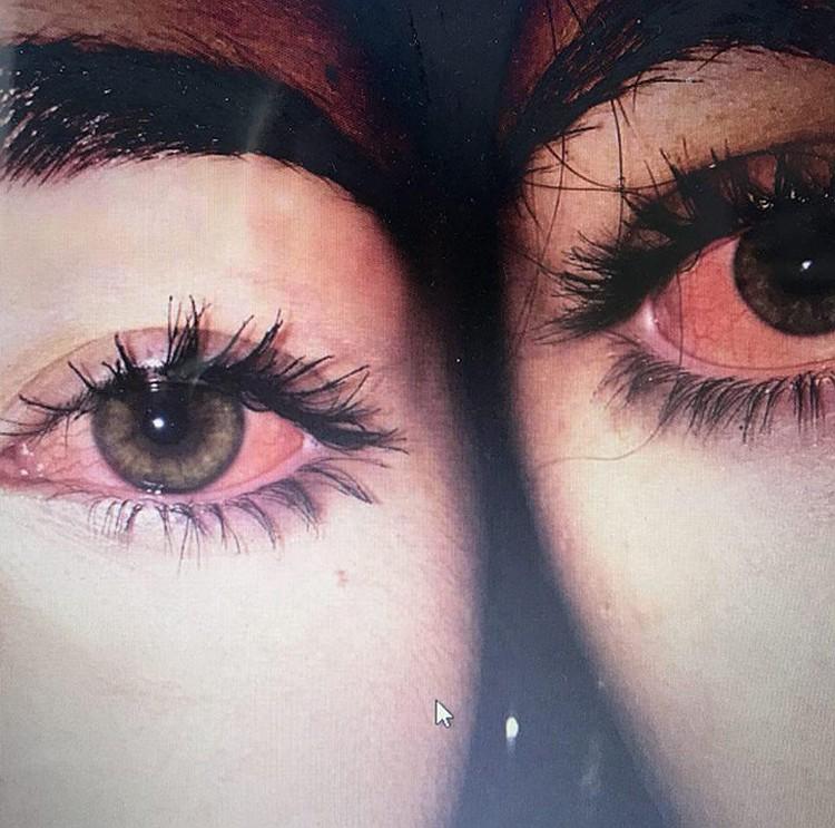 """Девочки """"хвастаются"""" эффектом от принятых наркотиков. Узкие зрачки, покраснение белка глаз - характерные признаки после приема наркотиков"""