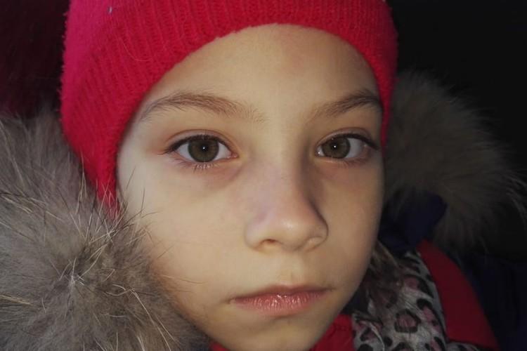 После злополучного удара у Кати распух нос. Фото: предоставлено Ириной ТУРСУКОВОЙ.