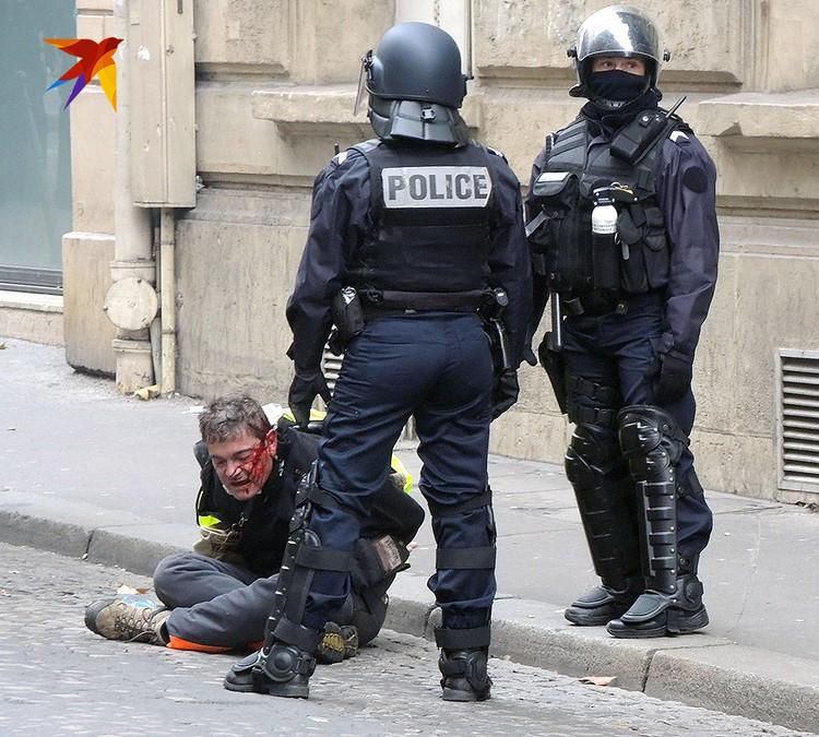 Один из задержанных истекает кровью под надзором полицейских.