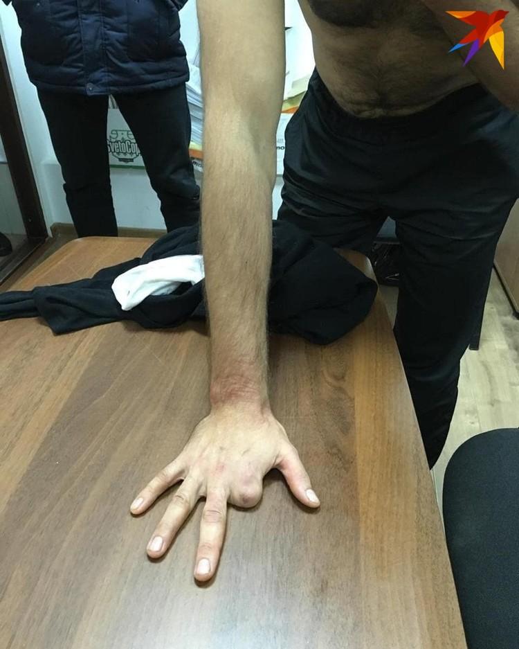 В полиции указывают на приметы беглого задержанного. У Антона Санникова нет пальца