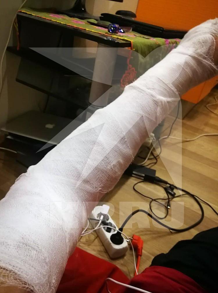 В Подмосковье полицейские при задержании сломали руку журналисту ВГТРК