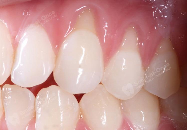 На фото – ярко выраженная рецессия десны и оголение зубных корней. Фото: Smile-at-Once