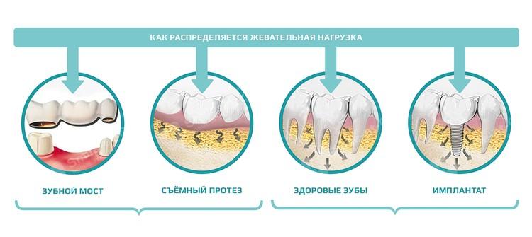 На фото наглядно продемонстрировано, какое влияние оказывают на десны и костную ткань живые зубы и различные протезы.