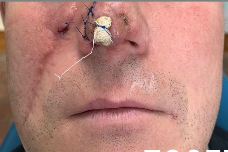 Внешний вид носа после первой операции. Фото: пресс-служба РКБ им. Н.А. Семашко