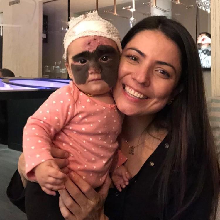 Впереди малышку ждет еще не одна операция. Фото: instagram.com/luna.love.hope