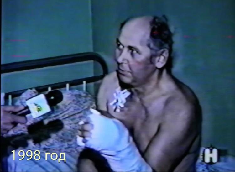 Михаил Тестов после операции. Фото: предоставлено Вадимом Кеосьяном