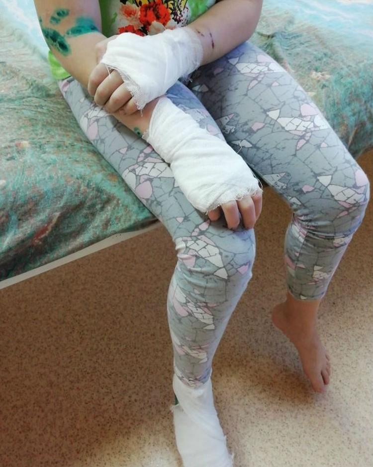 У ребенка прокусаны руки и ноги. Фото: предоставлено Анной Мазитовой.