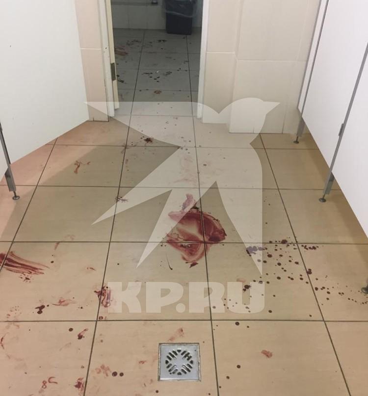 Насильник разбил голову жертве до крови