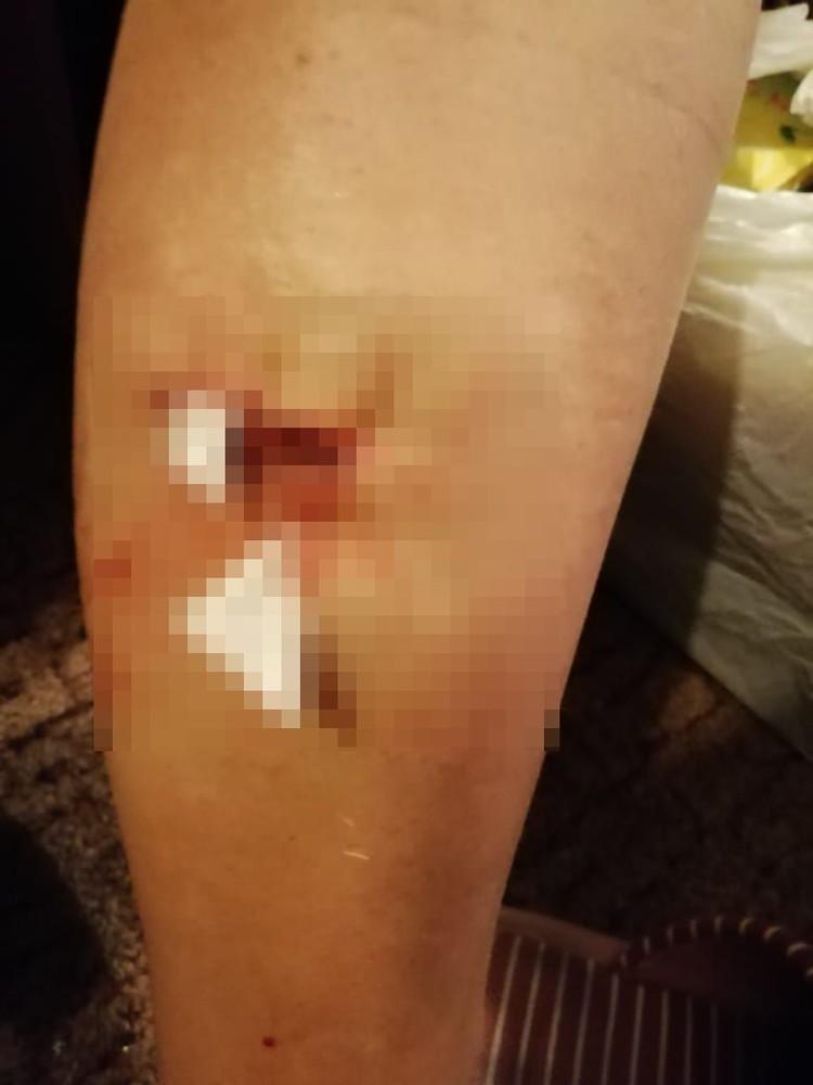 Сибирячка получила серьезную травму. Фото: личный архив.