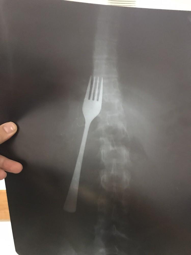Ишимские врачи впервые увидели такой инородный предмет в девичьем организме. Фото: пресс-служба ГБУЗ ТО «Областная больница №4» (г. Ишим)