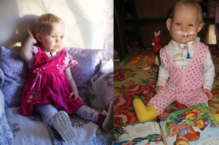 Первые пару лет жизни малышка не могла сама есть и дышать. Фото: представлено Надеждой Голышевой, мамой Наташи