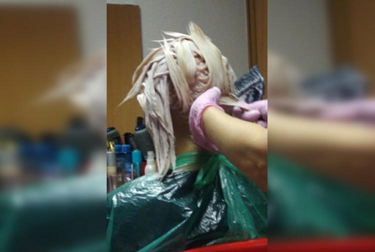 Нанесение обычной краски обернулось ожогом головы. Фото: предоставлено героиней публикации