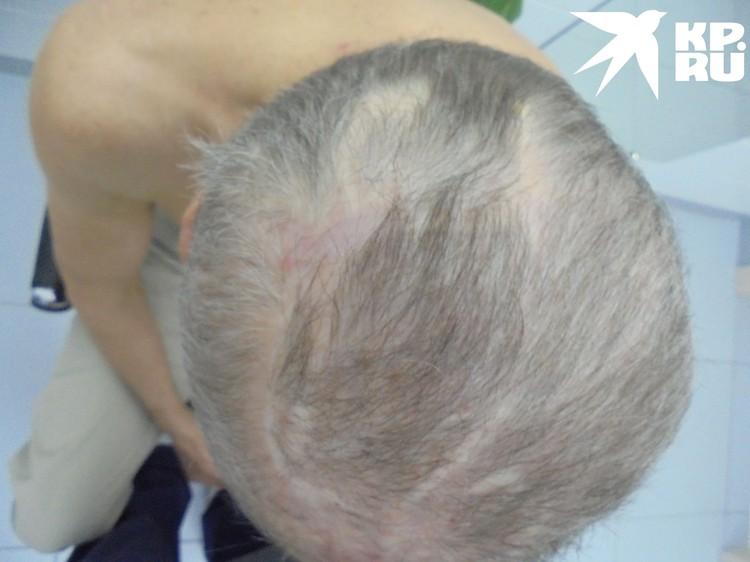 Скальп восстановлен, и на поврежденном участке растут волосы. Фото: личный архив героя.